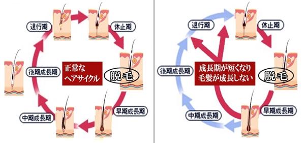 正常なヘアサイクルと成長期が短くなり毛髪が成長しないヘアサイクル